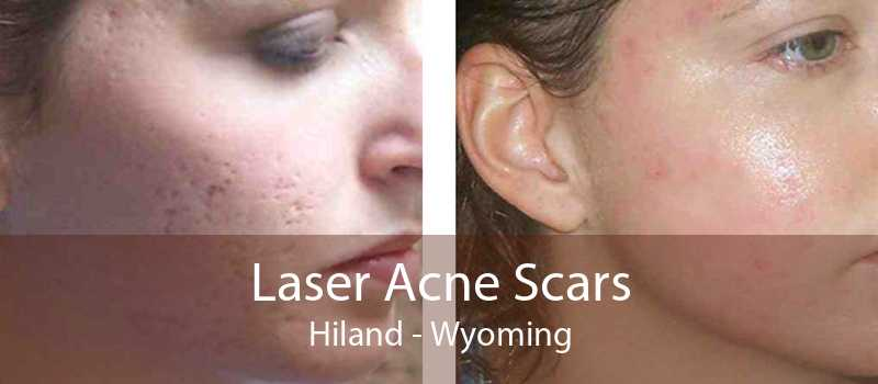 Laser Acne Scars Hiland - Wyoming