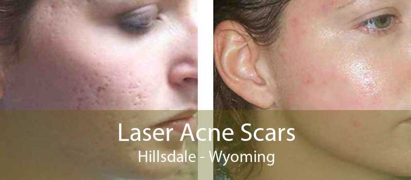 Laser Acne Scars Hillsdale - Wyoming