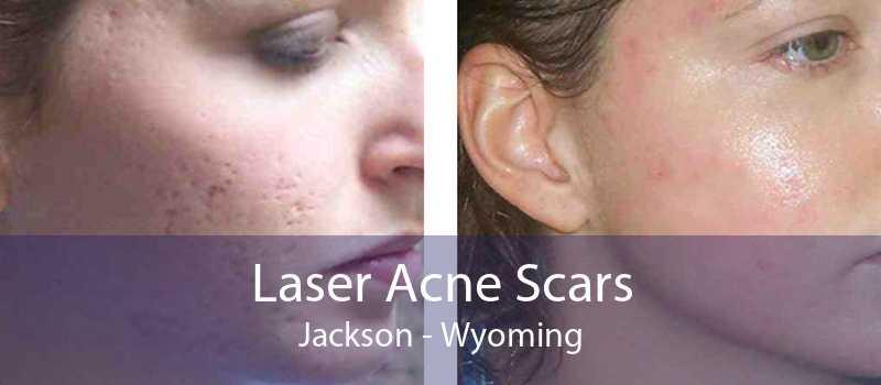 Laser Acne Scars Jackson - Wyoming