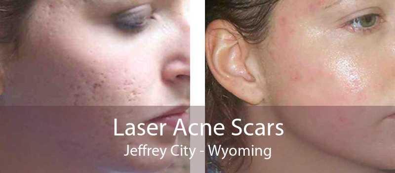 Laser Acne Scars Jeffrey City - Wyoming