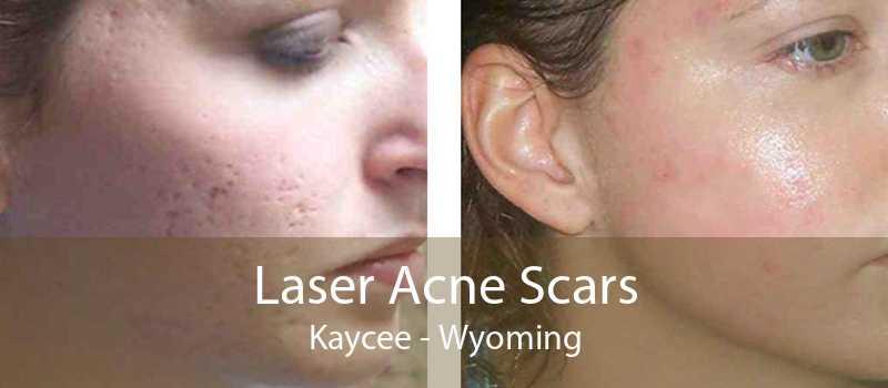 Laser Acne Scars Kaycee - Wyoming