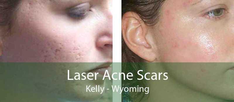 Laser Acne Scars Kelly - Wyoming