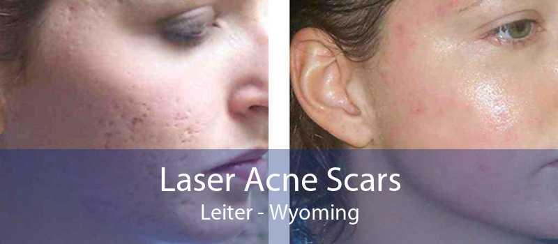 Laser Acne Scars Leiter - Wyoming