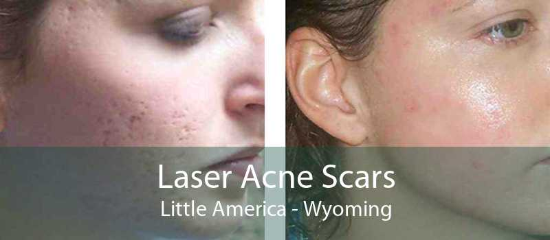 Laser Acne Scars Little America - Wyoming