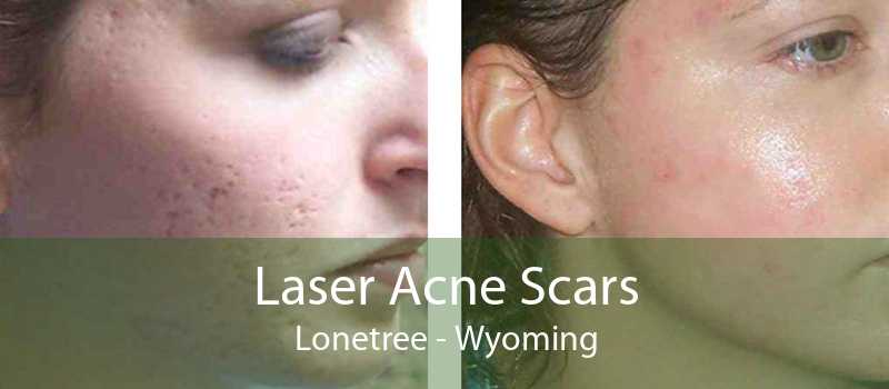 Laser Acne Scars Lonetree - Wyoming