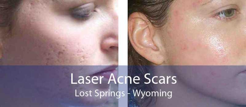Laser Acne Scars Lost Springs - Wyoming