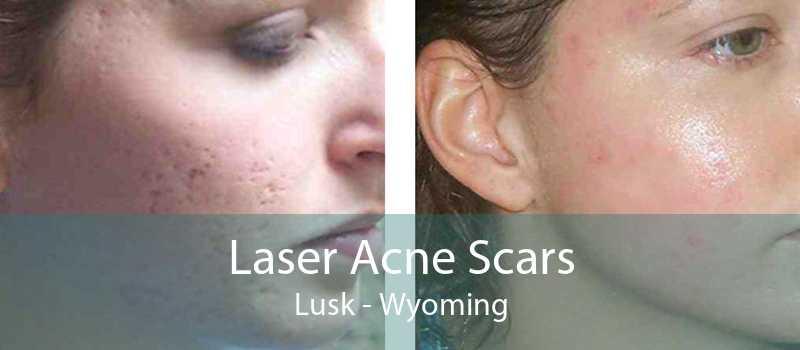 Laser Acne Scars Lusk - Wyoming