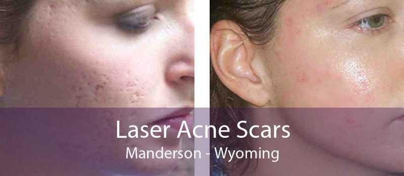 Laser Acne Scars Manderson - Wyoming