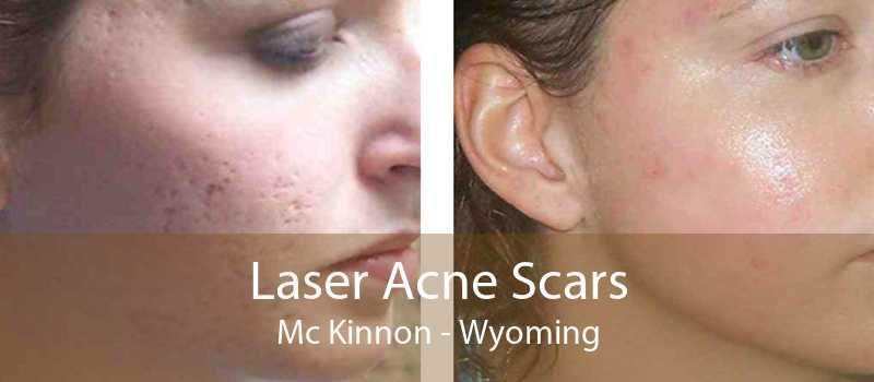 Laser Acne Scars Mc Kinnon - Wyoming