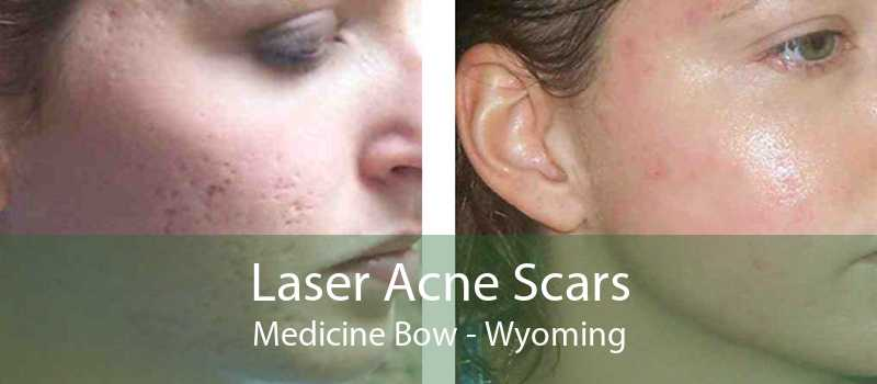 Laser Acne Scars Medicine Bow - Wyoming