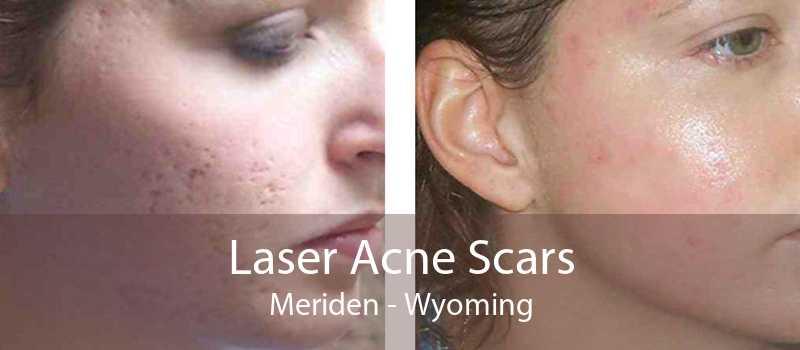 Laser Acne Scars Meriden - Wyoming