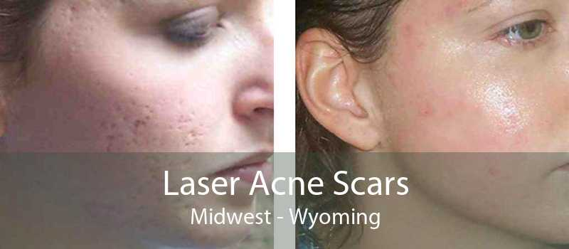Laser Acne Scars Midwest - Wyoming