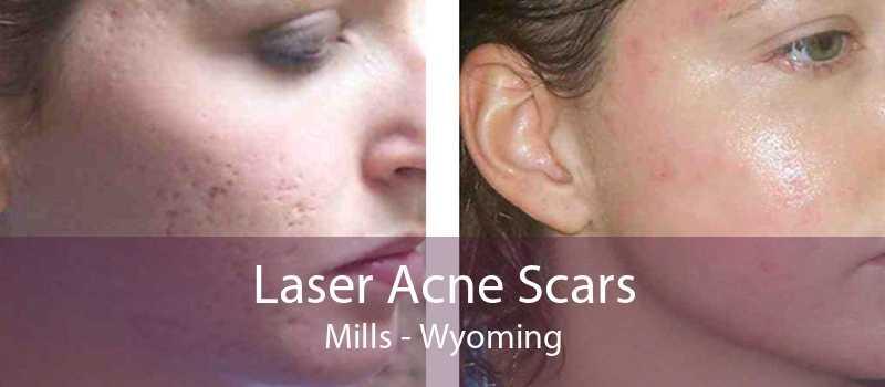Laser Acne Scars Mills - Wyoming