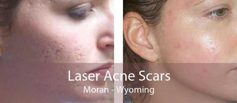 Laser Acne Scars Moran - Wyoming