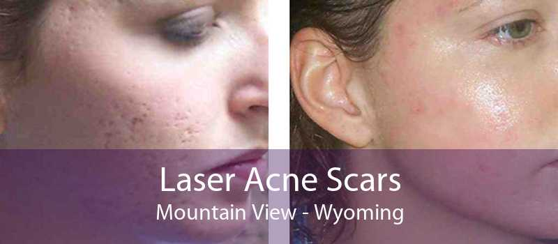 Laser Acne Scars Mountain View - Wyoming
