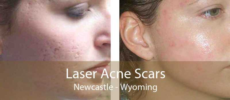 Laser Acne Scars Newcastle - Wyoming