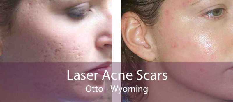 Laser Acne Scars Otto - Wyoming