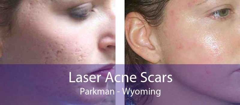 Laser Acne Scars Parkman - Wyoming