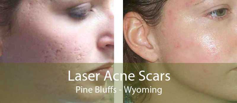 Laser Acne Scars Pine Bluffs - Wyoming
