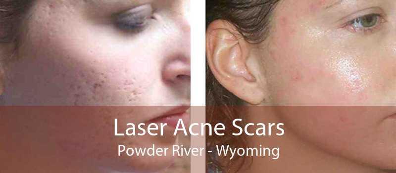 Laser Acne Scars Powder River - Wyoming