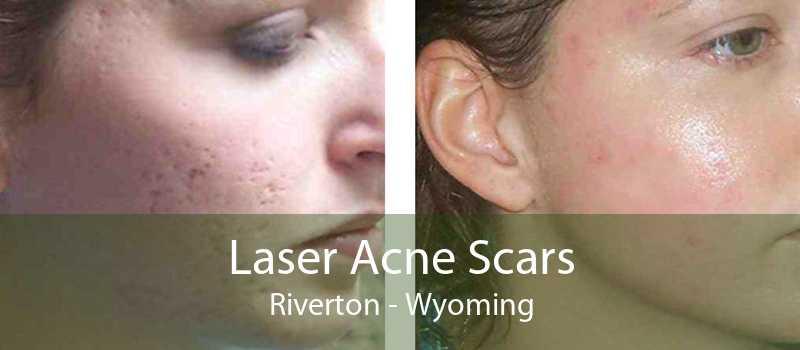 Laser Acne Scars Riverton - Wyoming