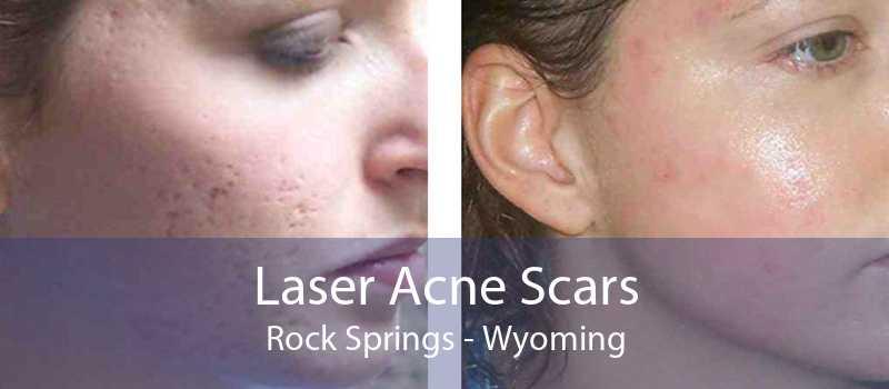 Laser Acne Scars Rock Springs - Wyoming