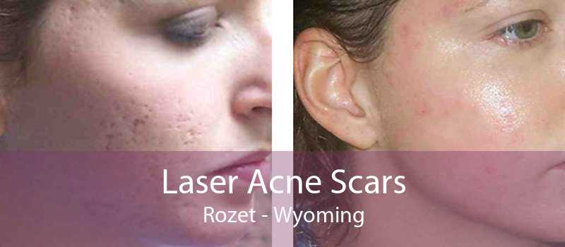 Laser Acne Scars Rozet - Wyoming