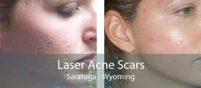 Laser Acne Scars Saratoga - Wyoming