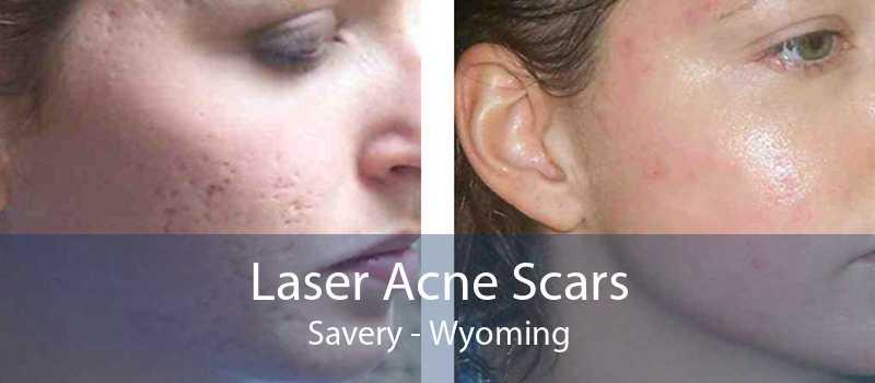 Laser Acne Scars Savery - Wyoming