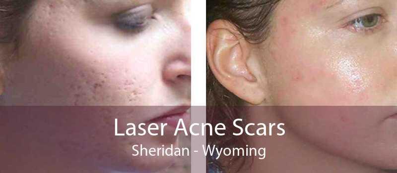 Laser Acne Scars Sheridan - Wyoming
