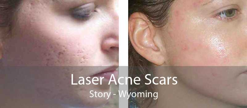 Laser Acne Scars Story - Wyoming