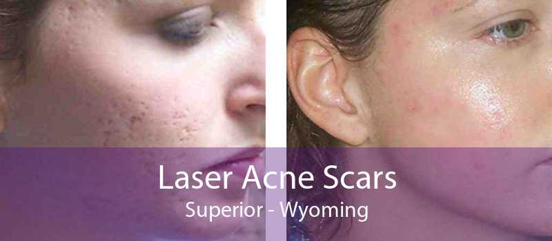Laser Acne Scars Superior - Wyoming