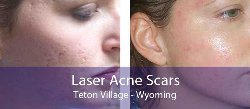 Laser Acne Scars Teton Village - Wyoming