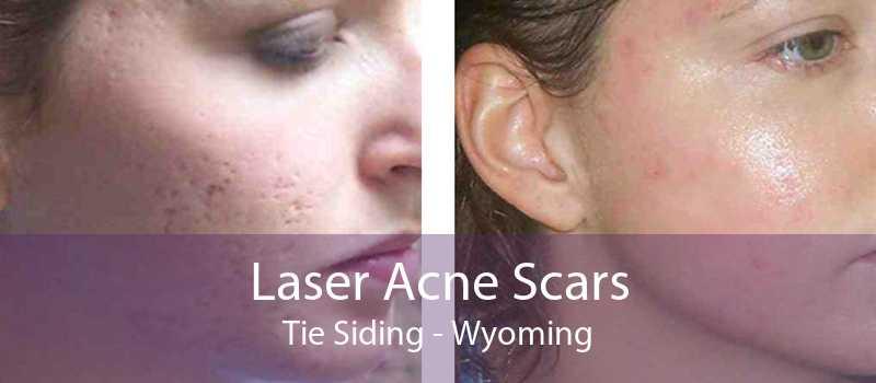 Laser Acne Scars Tie Siding - Wyoming