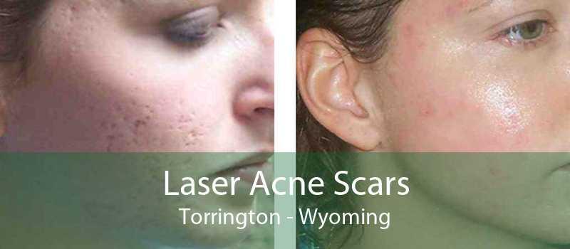 Laser Acne Scars Torrington - Wyoming