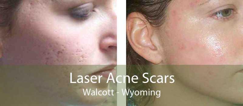 Laser Acne Scars Walcott - Wyoming