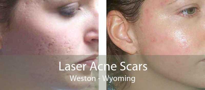 Laser Acne Scars Weston - Wyoming