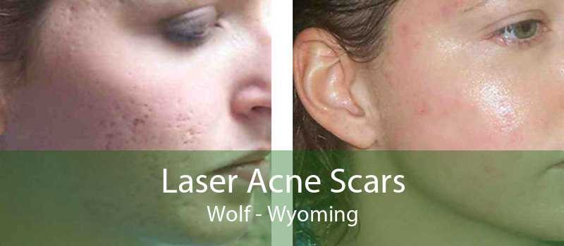 Laser Acne Scars Wolf - Wyoming