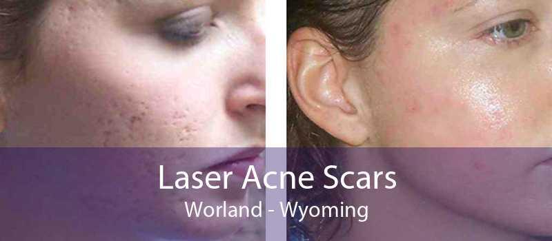 Laser Acne Scars Worland - Wyoming