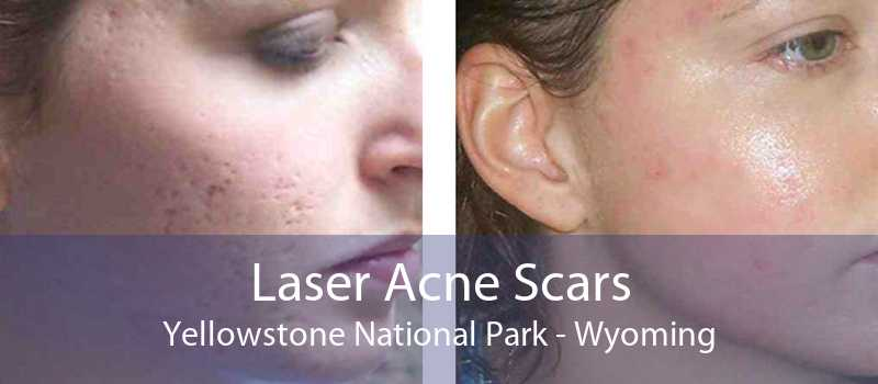 Laser Acne Scars Yellowstone National Park - Wyoming