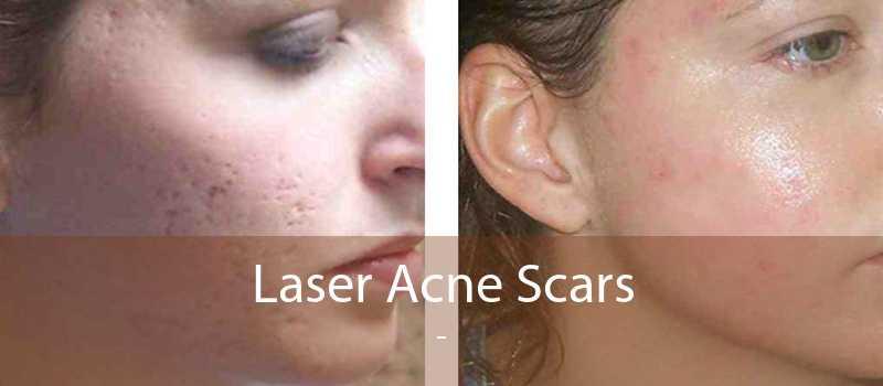 Laser Acne Scars