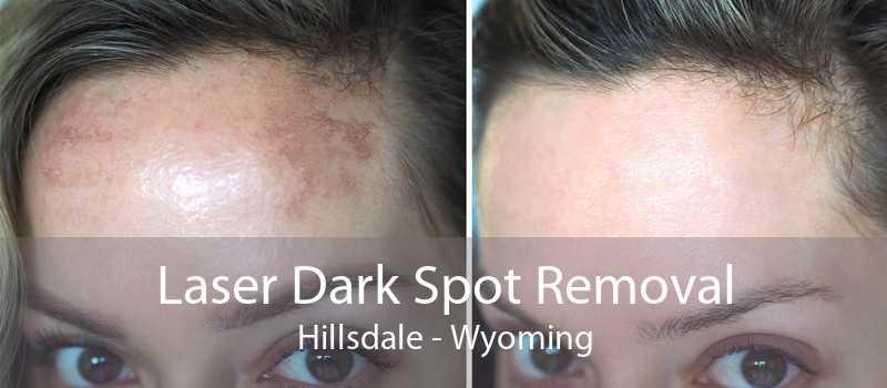 Laser Dark Spot Removal Hillsdale - Wyoming