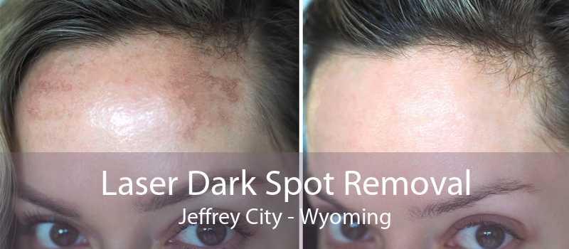 Laser Dark Spot Removal Jeffrey City - Wyoming