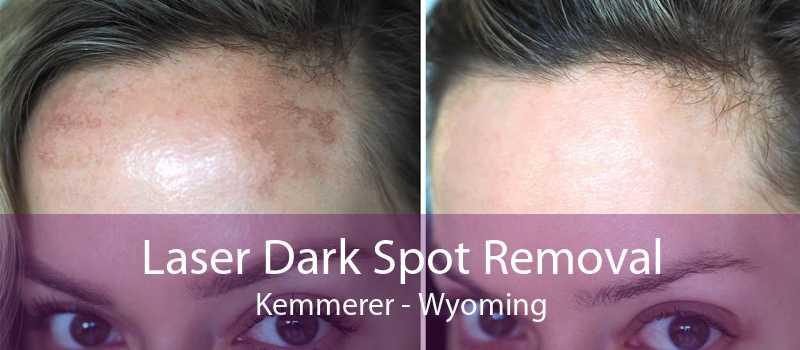 Laser Dark Spot Removal Kemmerer - Wyoming