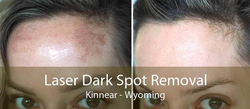 Laser Dark Spot Removal Kinnear - Wyoming