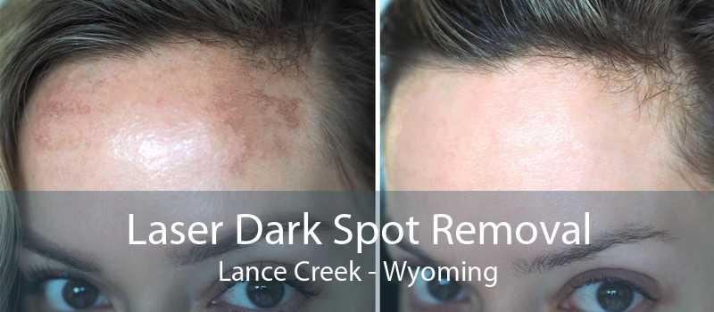 Laser Dark Spot Removal Lance Creek - Wyoming