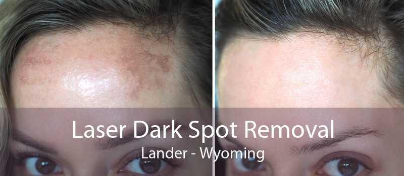 Laser Dark Spot Removal Lander - Wyoming