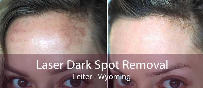 Laser Dark Spot Removal Leiter - Wyoming