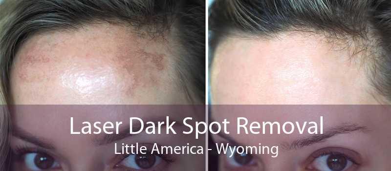 Laser Dark Spot Removal Little America - Wyoming