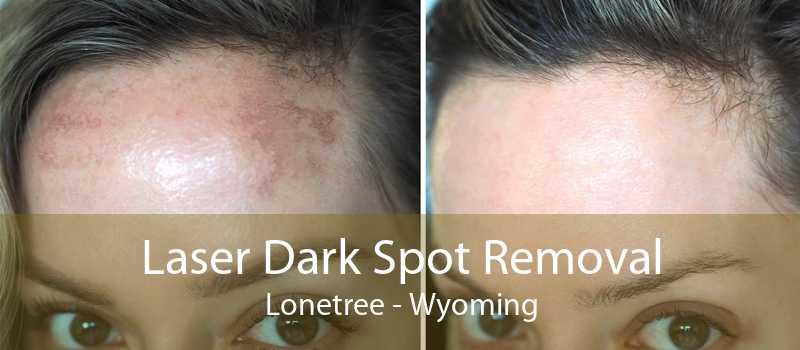Laser Dark Spot Removal Lonetree - Wyoming
